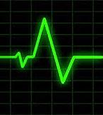 EKG graph